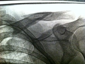 Scales' broken collar bone